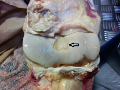 TB distal humerus, showing significant wear to cartilage.